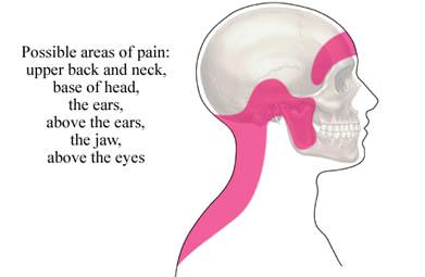 Headache treatment -REACH Chiropractic