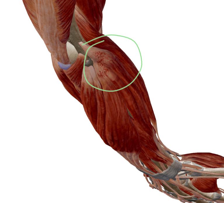 Elbow pain | Tennis Elbow | Golfer's Elbow | REACH Rehab